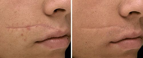 טיפול בצלקת פנים