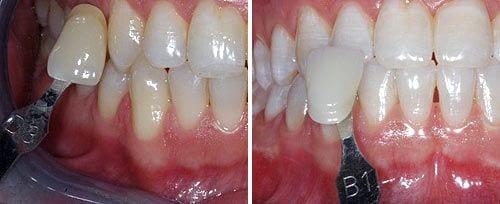 הבהרת שיניים